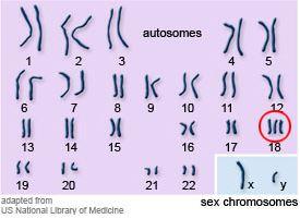 Karotype-of-Trisomy-18